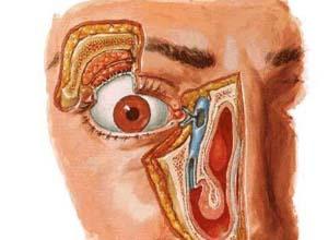 鼻泪管阻塞