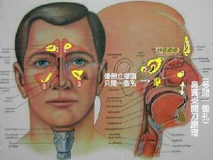 鼻黏膜可呈颗粒状易碎的结痂