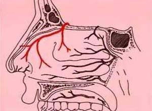 鼻黏膜溃疡