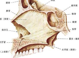鼻中隔向一侧或两则弯曲