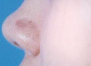 鼻子颜色苍白
