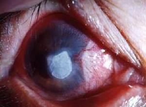 边缘溃疡性角膜炎