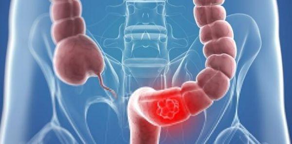 鉴别出结直肠癌得以继续恶化发展的新型代谢特性