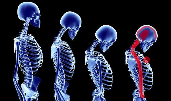 患上颈椎病有哪些危害? 颈椎病预防注意适当锻炼