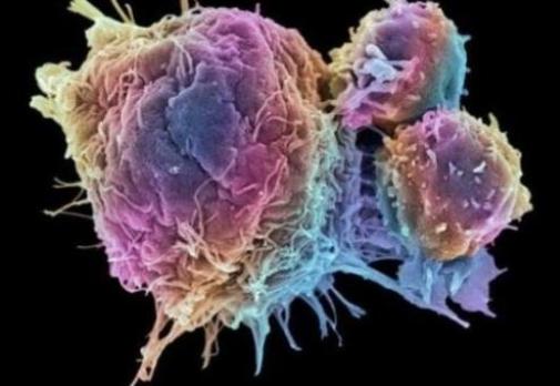 免疫系统新疗法或可治疗Ⅰ型糖尿病