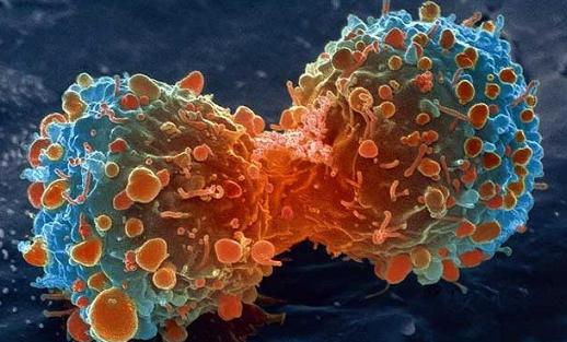 """神奇中子如何定向""""引爆""""癌细胞"""