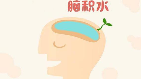 脑积水对小儿智力有影响 专家教你四招来预防